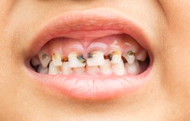 The Truth About Tooth Decay and How to Prevent It!